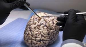 O nouă descoperire arată cum creierul e conectat la sistemul imunitar