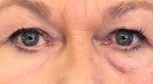"""""""A doua piele"""", soluția împotriva ridurilor și pungilor de sub ochi"""