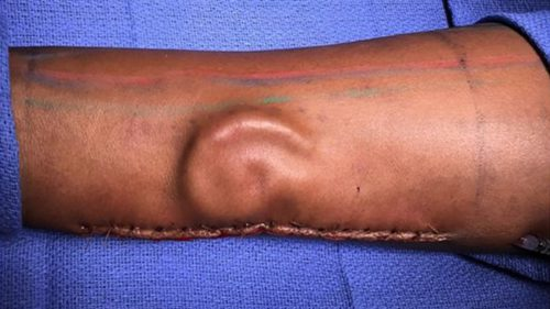 Un soldat și-a pierdut urechea, așa că medicii i-au crescut alta pe braț