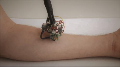Cum arată primul robot care se poate cățăra pe pielea umană