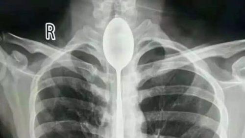 Cum a supraviețuit un bărbat cu o lingură în esofag timp de un an