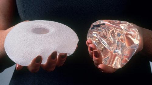"""Riscul neștiut al implanturilor mamare: ce înseamnă, de fapt, """"punerea de silicoane"""""""